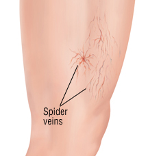Sclerotherapy treats leg spider veins