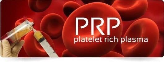 Tocolo, Platelet Rich Plasma (PRP) 0725