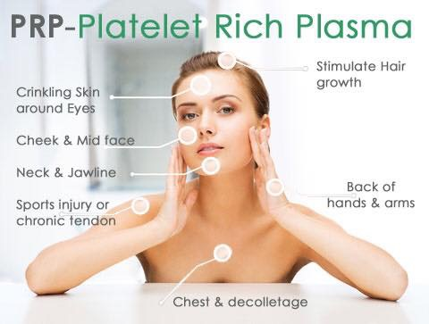PRP – Platelet Rich Plasma beauty treatment