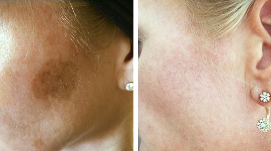 Tocolo cryotherapy blemish before and after