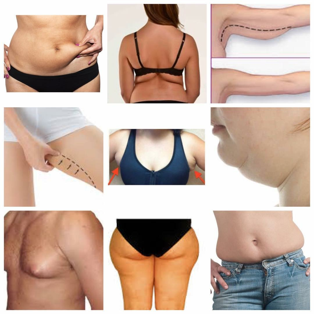 Tocolo – fat cellulite dissolving injections