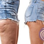 Tocolo – fat cellulite dissolving injections in the watford area